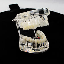 Dental Implant Study Analysis Demonstration Teeth Model with Restoration Lab Use