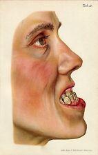 Antique print dentistry Habsburg jaw teeth 1908 Mandibular prognathism