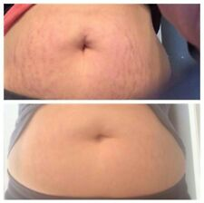 Wow Stretch mark scar remover and blemish free cream fast activating acne gone