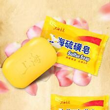 Hauterkrankungen Akne Seborrhoe Ekzem Anti-Pilz Shanghai Schwefel Schwefel Seif