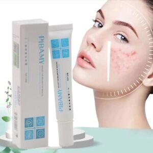 Fade Acne Stretch Marks and Acne Pit Treatment Moisturizing Skin Care Face Cream