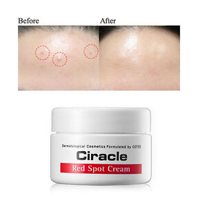 [Ciracle] Red Spot Healing Cream 30ml Trouble skin Pimple Acne Anti-blemish