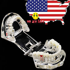 USA FDA Dental Implant Study Analysis Demonstration Teeth Model with Restoration