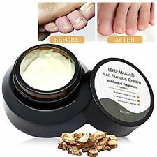Nail Fungus Cream,Fungus Stop,Foot Fungus,Anti fungal Nail,Fungus Treatment Crea