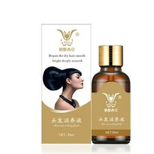 30ml Unisex Hair Care Fast Hair Growth Product Regrowth Essence Liquid Treatment
