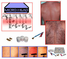 Professional Salon Microlysis Permanent Hair Removal System, Non Invasive Fast.
