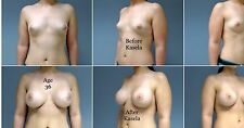 Nipple Enhancement Cream,Breast Enhancement,Booty Enhancement,Extreme concentrat