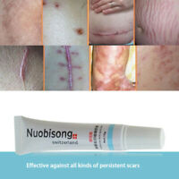 HOT Scar Removal Treatment Cream Acne Stretch Marks NEW