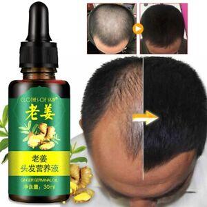 Hair Growth For Men Women Natural Re Grow Oil Serum Grow Loss Ginger Treatment