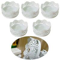 5set Cake Stand White Lace Design Iron Cupcake Plate Wedding Cake
