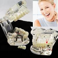 Transparent Restauration Implant Modèle Dentaire Maladie Prothèse Typodont Dents