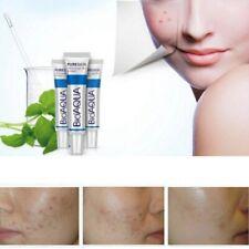 BIOAQUA Face Skin Care Acne Removal Cream Spots Scar Blemish Marks Authentic