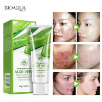 BIOAQUA Gel d'aloe Vera naturel hydratant visage crème Anti-rides blanchissante