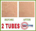 NO MORE RED BUMPS ON SKIN  BEST KERATOSIS PILARIS TREATMENT  2 TUBES