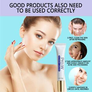 Pro.W Blemish Cream Spots Removal Treatment Pimple Ointment Scar Mark HOT 2021