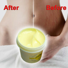 Smooth Repair Cream For Stretch Mark Postpartum Pregnancy Scar Removal Skin Care