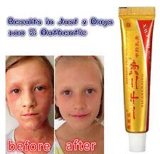 Herbal Medicine Effective cream Eczema Rash Vitiligo Dermatitis Skin Treatment