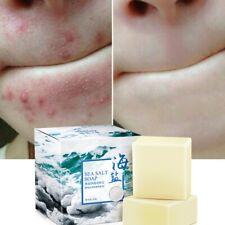 Acne Treatment Face Wash Soap Goat Milk Sea Salt Soap Bath Shower 100g Hot Sell!