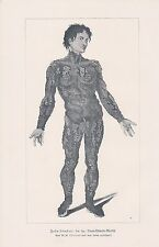JOHN LAMBERT porc épic-humain Lithographie de 1901