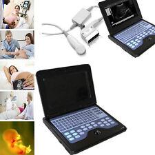 Bewegliche Digital-Laptop-Ultraschall-Scanner-Maschine mit 3,5 Herz/Convex-Sonde