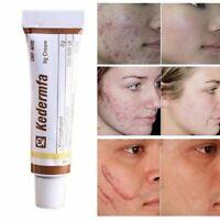Snake Oil Remove Scar Skin Care Acne Spots Pigmentation Striae Corrector Cream