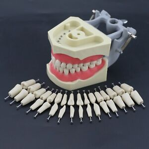 Columbia 860 Type Dental Typodont Teaching Exam Model Removable 32PCS Teeth