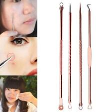 4Pcs/set Pimple Blemish Blackhead Comedone Acne Extractor Remover Tools Needles