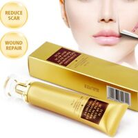 Akne Narbe Entfernung Haut Reparatur Gesichtscreme Akne Flecken Behandlun M D2E4