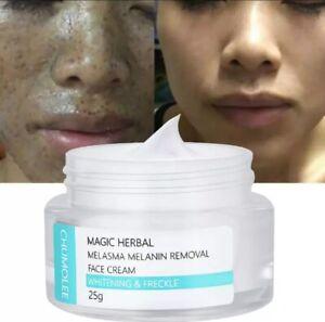 CHUMOLEE Strong Whitening Cream Freckle Cream Remove Melasma Acne Dark Pigment