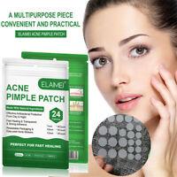 Hydrokolloid Aufkleber für Pimple-Behandlung Patch entfernen von Akne
