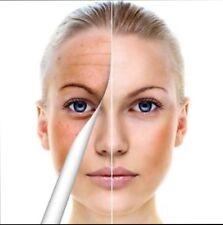 Retinol ol A 2% Huge 50g Acne Wrinkle Scar Anti age Spot Vitamin Gel Cream Peel