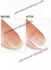 NEW Nail Whitener Nail Brightener Quick & Amazing Results STRONG EFFECT 13 ml