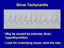 139 page EKG BASICS Electrocardiogram PowerPoint Presentation on CD