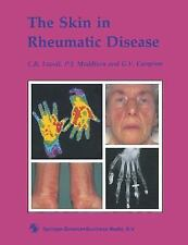 The Skin in Rheumatic Disease-ExLibrary