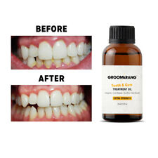 POTENT Gum Disease Treatment Bad Breathe Cure Stop Bleeding Receeding Gums Teeth
