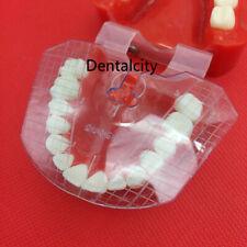 1set Dental Lab Dental Guide Plate Teeth Arrangement On Denture Work