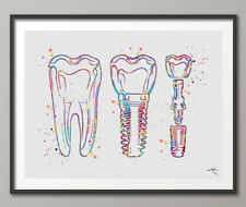 Implant Line Art Watercolor Print Tooth Office Art Medical Art Dentist Gift-1253
