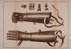 Framed Print - Medieval Iron Prosthetic Hand (Antique Medical Picture Pathology)