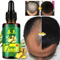 7 Day Ginger Germinal Serum Essence Oil Natural Hair Loss Fast Growth Treatement
