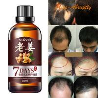 Fast Hair Growth Dense Regrowth Ginger Serum Oil Anti Loss Treatment Essence