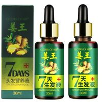 30ml Hair Loss Treatment Ginger Hair Care Growth Essence Oil for Men Women