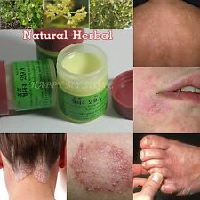 3x7.5g Eczema Tinea Ringworm Cure Relieve Psoriasis Anti Fungal Hong Kong Foot l