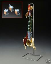 Spine Vertebrae Anatomical Model Spinal Curvature w Muscle Disorders LFA #2333 *