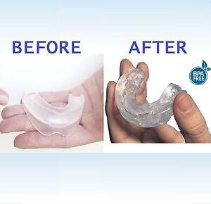 Dental Mouth Guard CUSTOM-FIT Anti Snore Night Sleep Apnea Mouthpiece Grind Aid