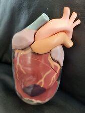 Vintage Pharmaceutical Heart Failure Anatomical Model