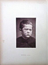 Hand Colored Collotype From Photographic Illustrations of Skin Diseases (VII)