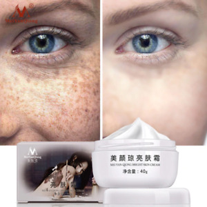 Strong Effect Whitening Freckle Cream 40g Remove Melasma Acne Dark Spot Pigment+