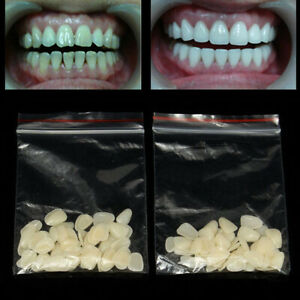 100X Temporäre Kronen Frontzähne Seitenzähne Zahnersatz Kunststoffzähne Zähne