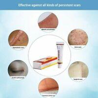 Acne Scar Skin Care Removal Cream Oil Spots Corrector Anti-Aging Pigmentation