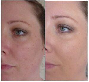 Anti Aging SkinCare Kit for Dry Skin Cleanser Toner Serum Moisturizer Cream